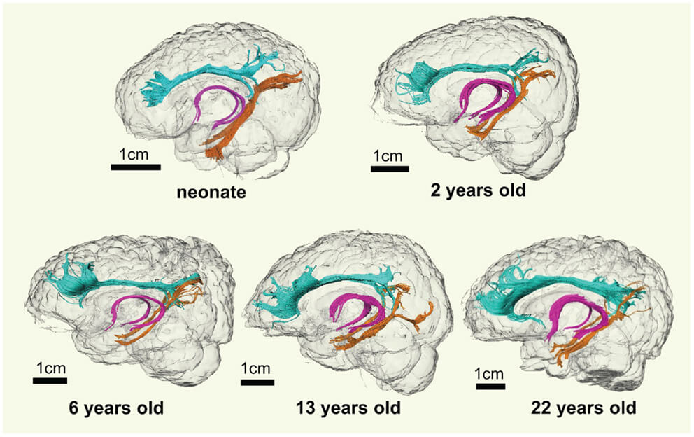 The Heart Of Matter Adolescent Brain >> Adolescent Brain Development And What It Means Betterhelp